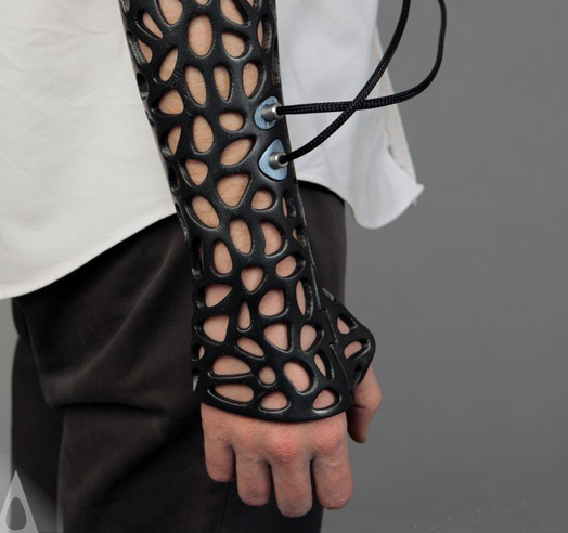Osteoid 3D-printed medical cast by Deniz Karasahin of DK Design